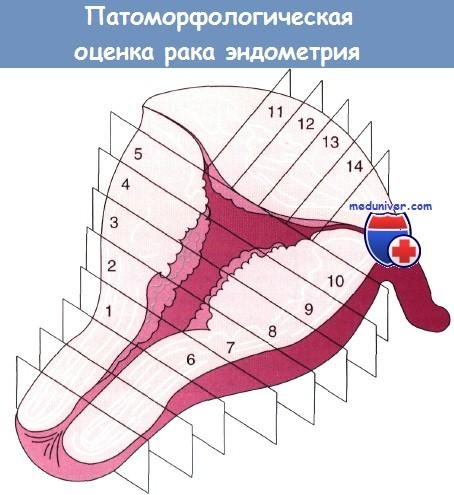 Эндометриоидная аденокарцинома с плоскоклеточной дифференцировкой 8