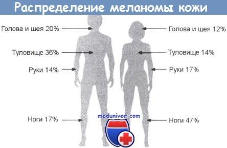 Распределение локализации меланомы кожи