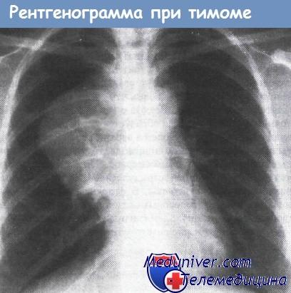 Рентгенограмма при тимоме
