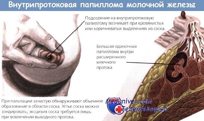 Внутрипротоковая папиллома молочной железы - диагностика, лечение