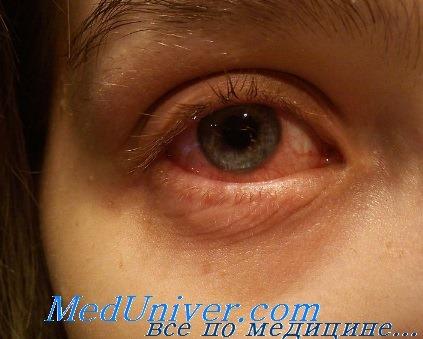 субконъюнктивальное кровоизлияние при травме глаза