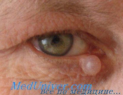 Апокринная гидроцитома века глаза
