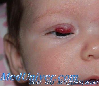 гемангиома глаза