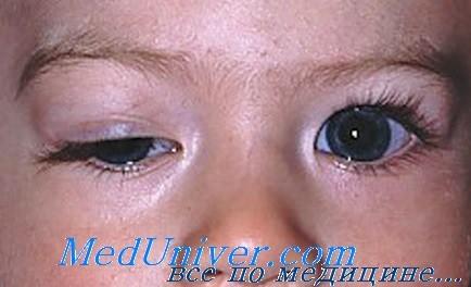 Парез глазодвигательного нерва: причины, диагностика, лечение
