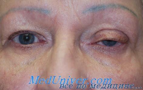 Лечение при травме века глаза thumbnail