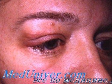 фото воспаление слезной железы