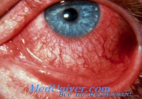 Аденовирусный конюнктивит