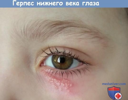 Поражение глаз вирусом герпеса. Офтальмогерпес