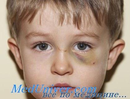 Гнойная ангина лечение в домашних у детей фото