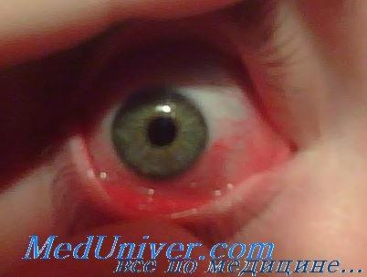 Травмы глаз детей фото