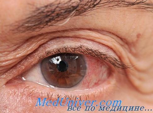паразиты в глазах человека фото