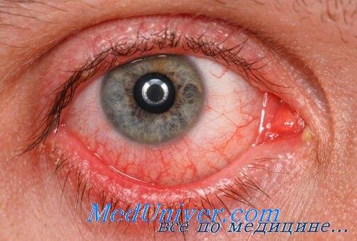 Поражение глаз при стронгилоидозе, телязиозе