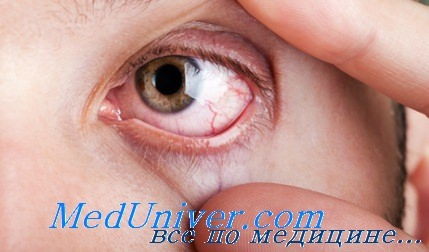 http://meduniver.com/Medical/ophtalmologia/Img/272.jpg