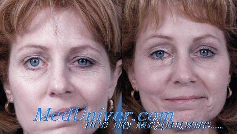 Улыбка при параличе лицевого нерва