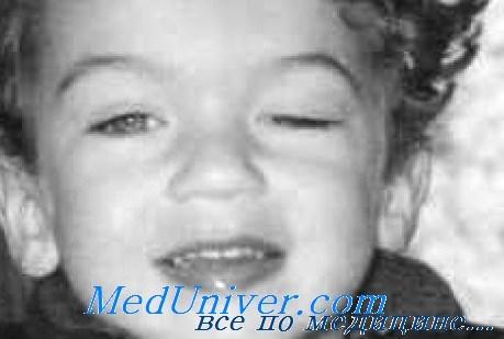 Эпикантус и лагофтальм у детей. Ретракция век