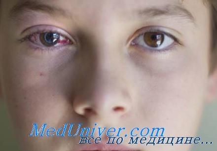 повреждение глаз у детей