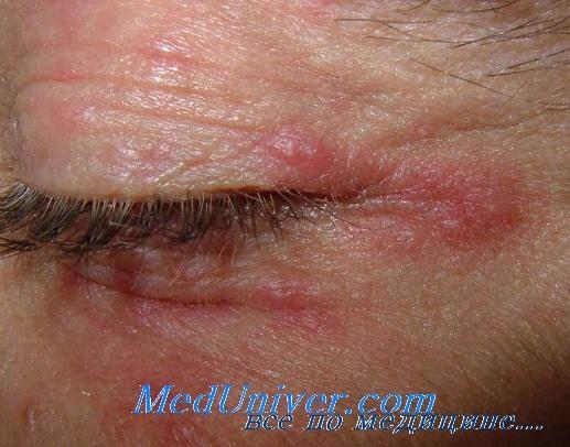 Грибковые поражения века глаза. Клиника и дифференциация