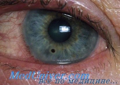 Химические ожоги глаз. Механизмы развития