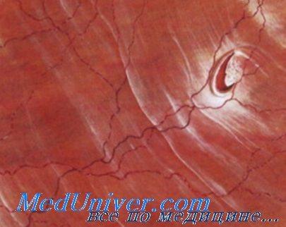 Отрыв основания стекловидного тела и отслойка задней гиалоидной ...