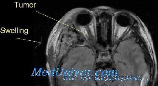 Признаки невриномы, нейрофибромы, менингиомы глаза на КТ