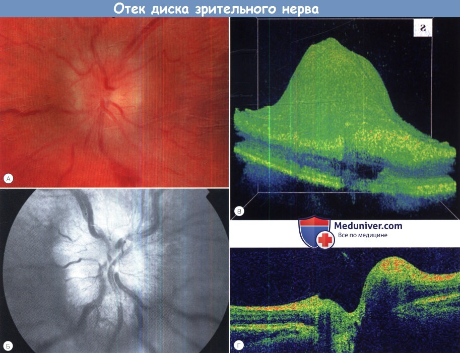 Oftalmolog Ulan Ude - Metoda Stanislavsky în oftalmologie
