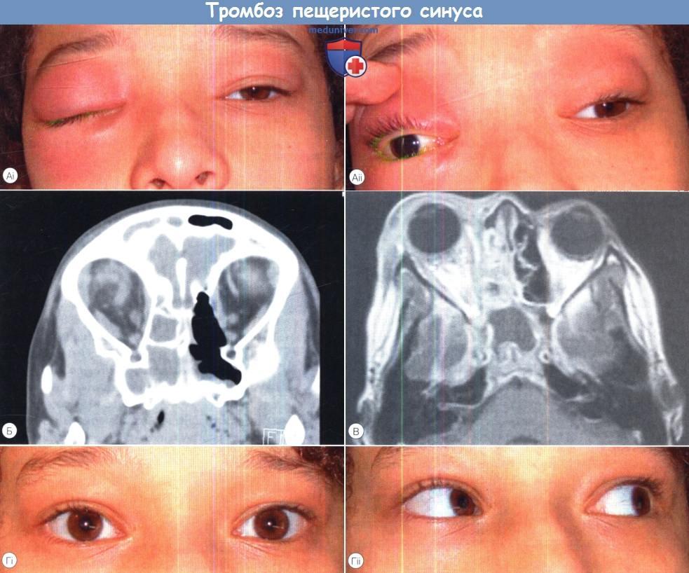Редкий, но очень опасный тромбоз кавернозного синуса — симптомы и лечение 97