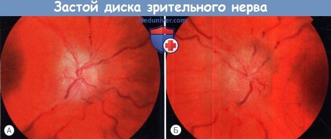 Застой диска зрительного нерва при высоком внутричерепном давлении