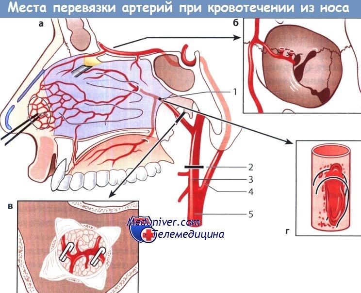 Порядок оказания первой помощи при носовом кровотечении thumbnail