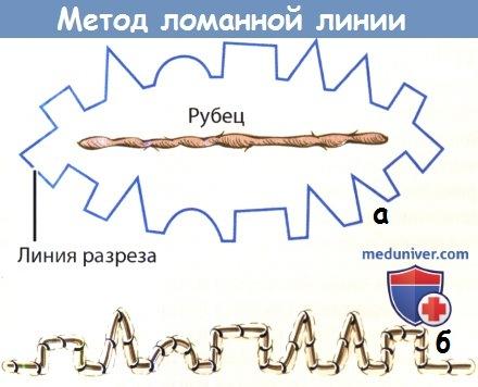 Метод ломанной линии