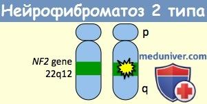 Генетика нейрофиброматоза 2 типа