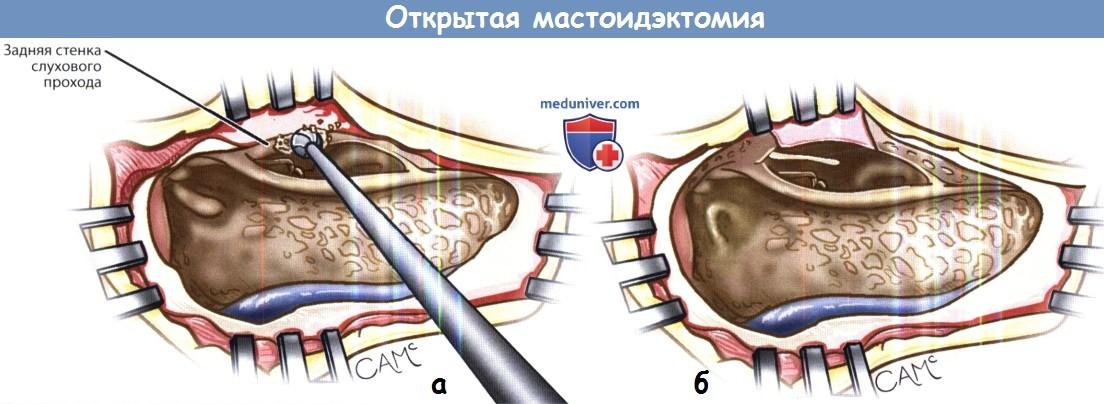 Этапы открытой мастоидэктомии