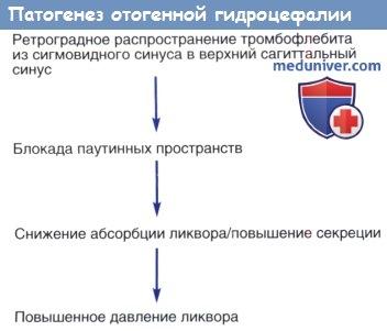 Патогенез отогенной гидроцефалии