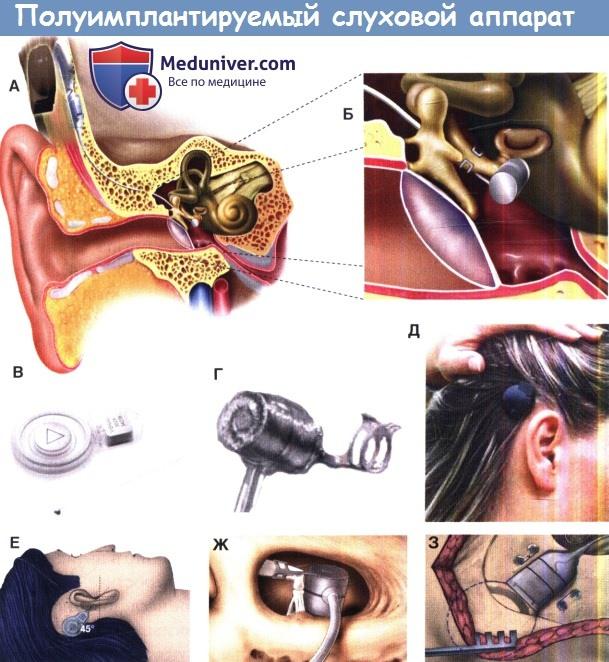 Полуимплантируемый слуховой аппарат Vibrant Soundbridge