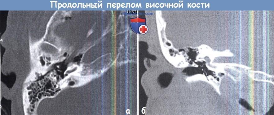 Продольный перелом височной кости