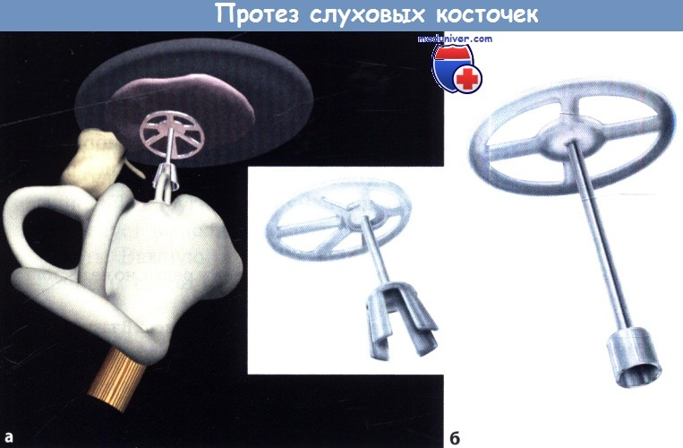 Протез слуховых косточек уха