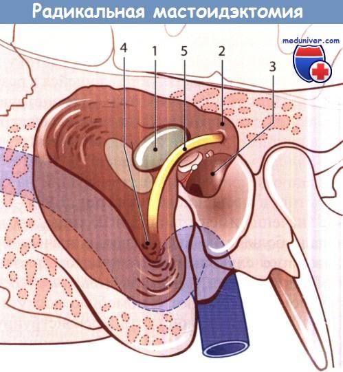 Радикальная мастоидэктомия
