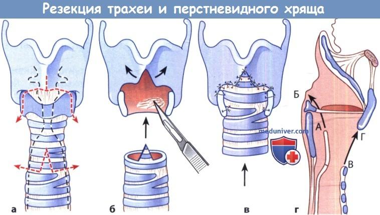 Резекция трахеи и перстневидного хряща