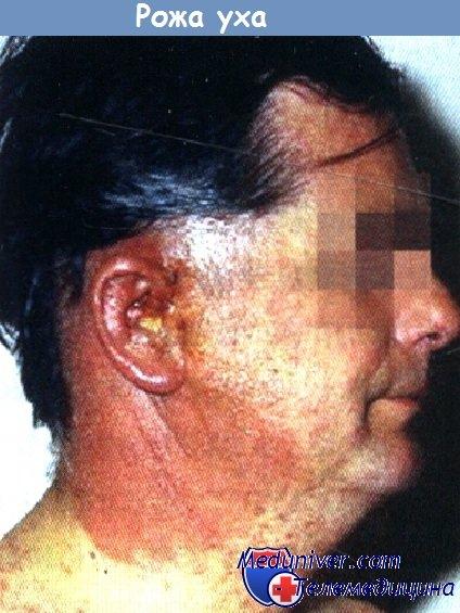 рожистое воспаление ушной раковины