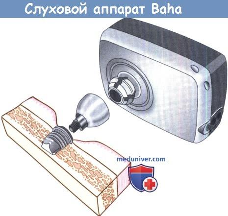 Слуховой аппарат Baha (bone anchored hearing aid)
