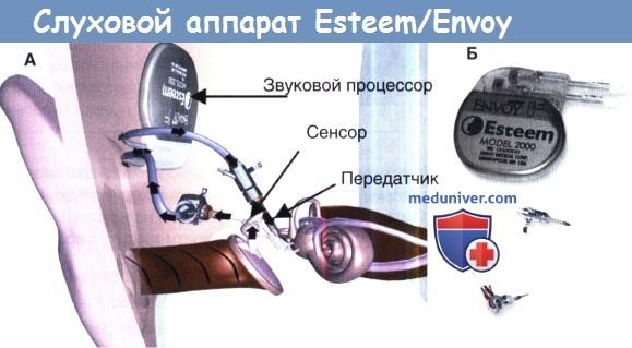 Слуховой аппарат Esteem/Envoy