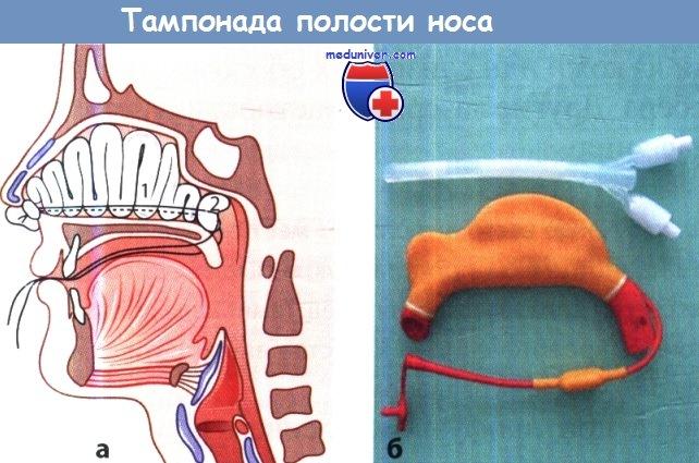 Передняя тампонада полости носа