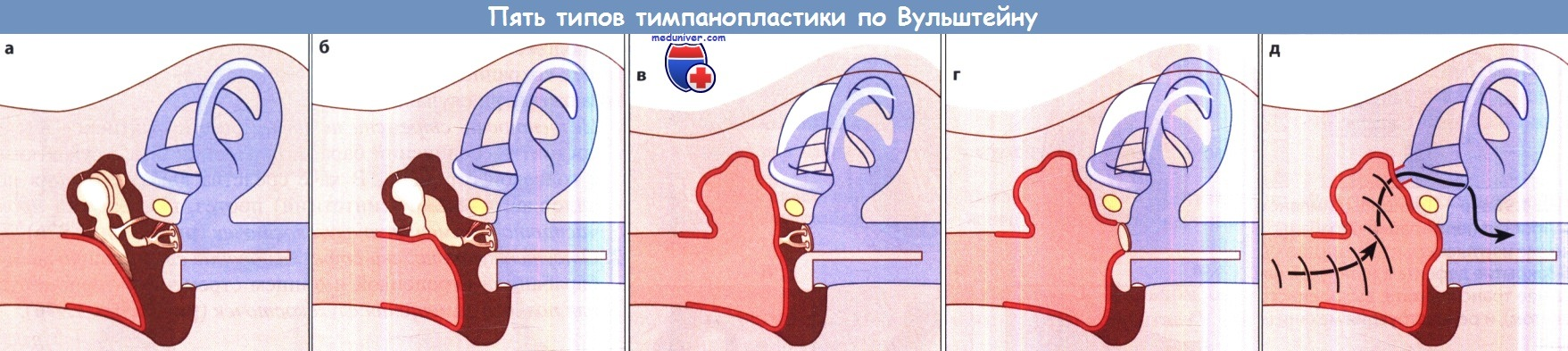 Пять типов тимпанопластики по Вульштейну