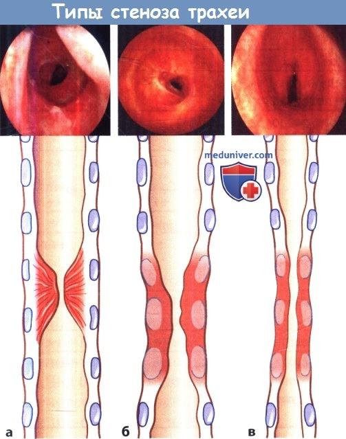 Типы стеноза трахеи