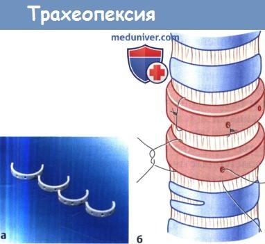 Трахеопексия