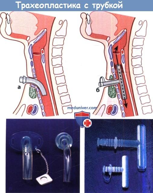 Трахеопластика с трубкой