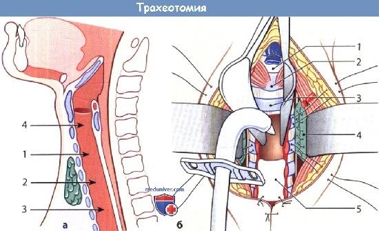 Техника трахеотомии
