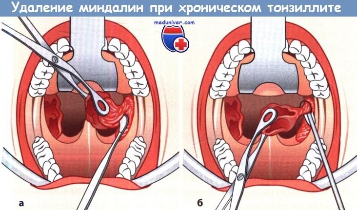 Удаление миндалин при хроническом тонзиллите (тонзиллэктомия)