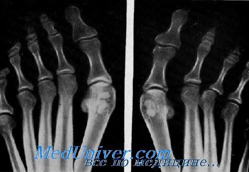 перелом сесамовидной кости стопы