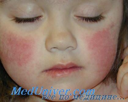 Инфицирование детей парвовирусом В19 (пятая болезнь): клиника ...