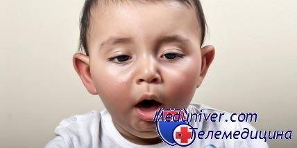 Коклюшный бронхит у ребенка thumbnail